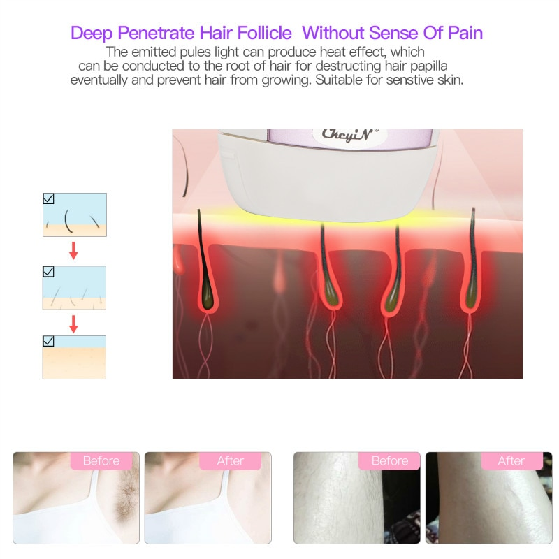 Safety Painless Permanent IPL Laser Hair Removal Machine Photon Pulsed Epilator Whole Body Handheld Laser Lady Shaver Razor S50 16